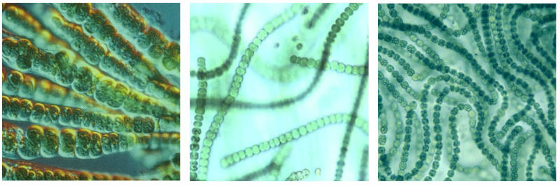 Microscopic Blue Green Algae and Swimming